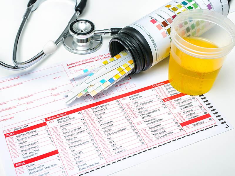 Urine onderzoek Severens Amstenrade